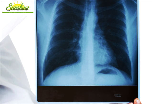 x-ray result